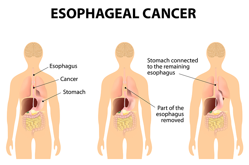 esophagal cancer